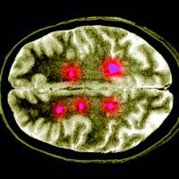 Hlavní obrázek - Fingolimod zpomaluje progresi disability