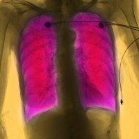 Hlavní obrázek - Další krok v prevenci akutních exacerbací CHOPN