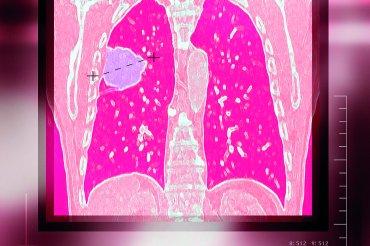 Hlavní obrázek článku - Analýza miRNA jeví potenciál pro personalizovaný screening rizika Ca plic